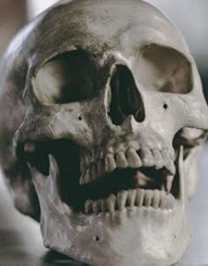 череп